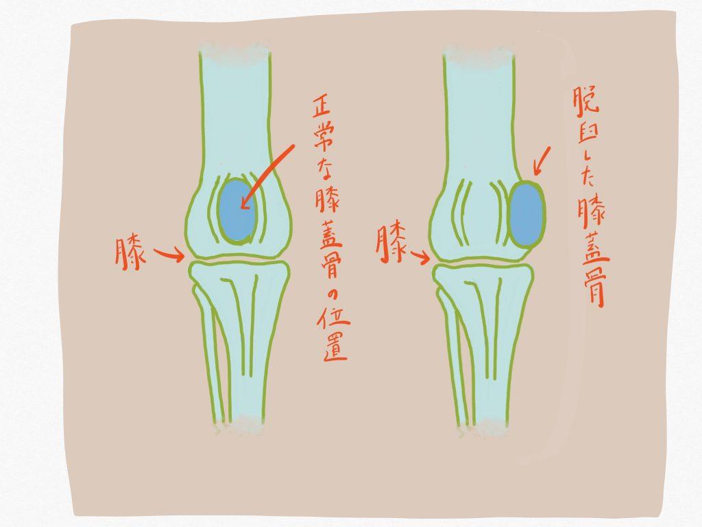 ワンちゃんの膝蓋骨脱臼って?